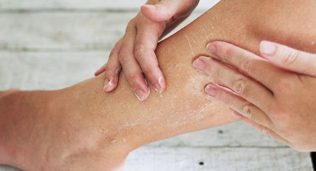 Dry skin culprits and saviours
