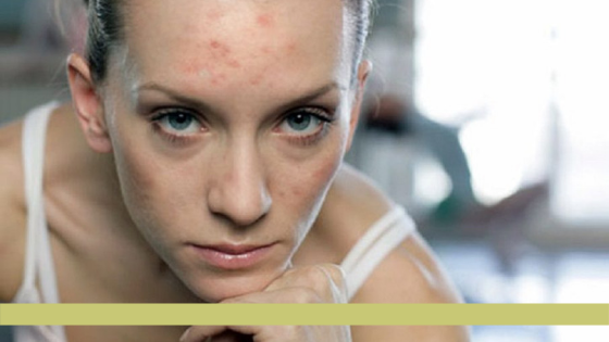 Reduce the appearance of acne scars naturally